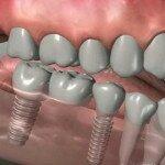 Что лучше установить: имплант или мостик?