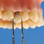 Как проводится протезирование на имплантах при полном отсутствии зубов?