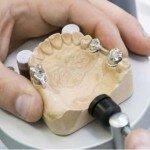 Где можно провести ремонт зубного протеза в Москве?