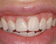 Временные зубные коронки