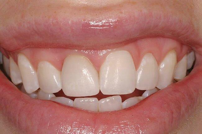 Зачем нужна временная коронка на зуб