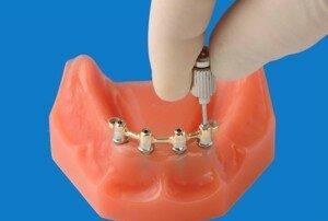 Балочный метод крепления протеза