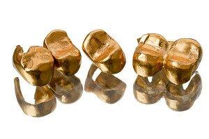 Золотые коронки на зубы