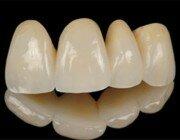 Фарфоровые зубные коронки