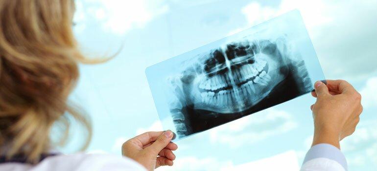 Анализ рентген снимков зубов