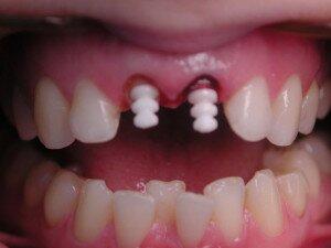 Безметалловые штифты для передних зубов