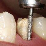 Как проходит препарирование зубов под коронки из металлокерамики?
