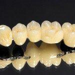 Металлокерамические зубные протезы, особенности установки