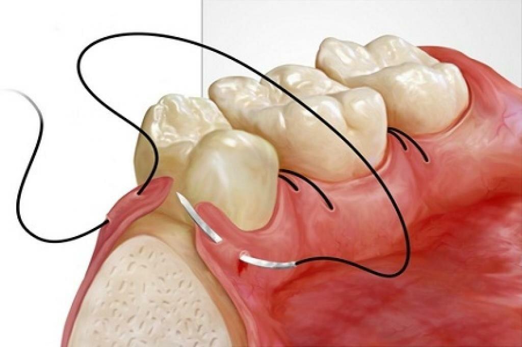Стоматология карман в зубе