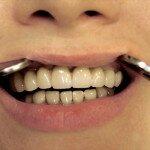 Особенности съемных протезов на верхнюю челюсть, акриловые, бюгельные изделия