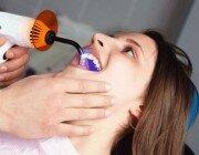 Композитное наращивание зубов