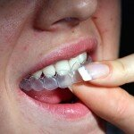 Отбеливание зубов каппами и пластинками: преимущества и особенности