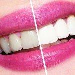 Реставрационное отбеливание зубов: особенности процедуры и расценки