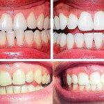Самые безопасные методы отбеливания зубов, обзор