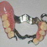 В чем преимущества зубных протезов без неба?