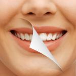 Акции и скидки на отбеливание зубов в Москве 2016