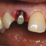 Отторжение зубного импланта (периимплантит): причины, симптомы, профилактика