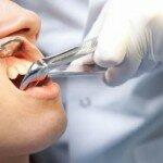 Когда показано удаление корня зуба?