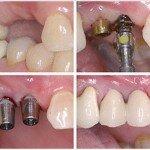 Какие анализы нужно сдавать пациенту перед имплантацией зубов?