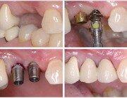 Анализы для имплантации зубов