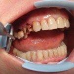 Как и по каким показаниям происходит снятие зубных коронок?
