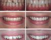 Методы реставрации кривых зубов