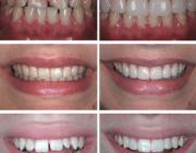 реставрация кривых зубов