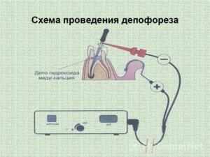 процедура депофореза