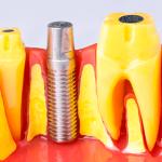 Насколько больно устанавливать зубные импланты?